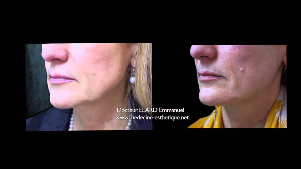 traitement de l 39 ovale du visage par radiesse youtube. Black Bedroom Furniture Sets. Home Design Ideas