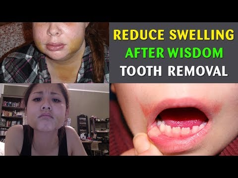 How To Reduce Swelling After Wisdom Tooth Removal?How To Reduce Swelling After Wisdom Tooth Surgery