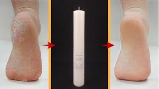 Идеальный рецепт от трещин на ногах | Чистые пятки всего от одной свечи