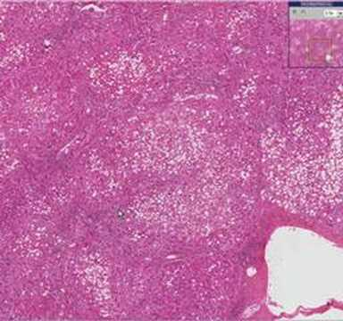 Histopathology    Liver    Alcoholic    liver    disease  YouTube