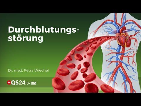 Civilization disease - circulatory disorders