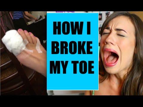 HOW I BROKE MY TOE!