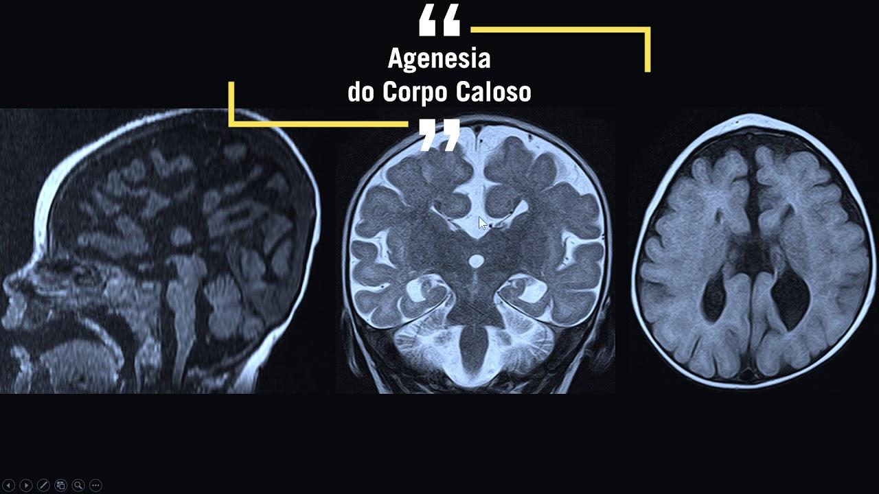 agenesia parcial do corpo caloso