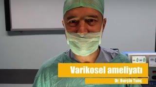 Varikosel Ameliyatı Izle