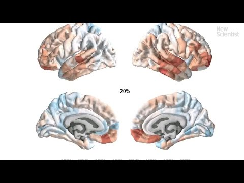 The Heart Of Matter Adolescent Brain >> Revealed The Teenage Brain Upgrades That Occur Before Adulthood