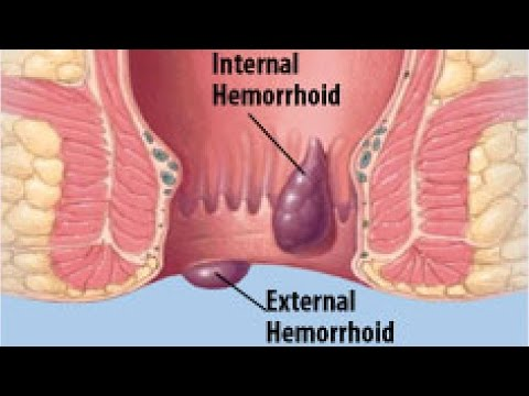 3 Ways to Shrink Hemorrhoids - wikiHow