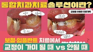 통합 치과 치료 솔루션이란? [일반 치과치료(보철▪임플…