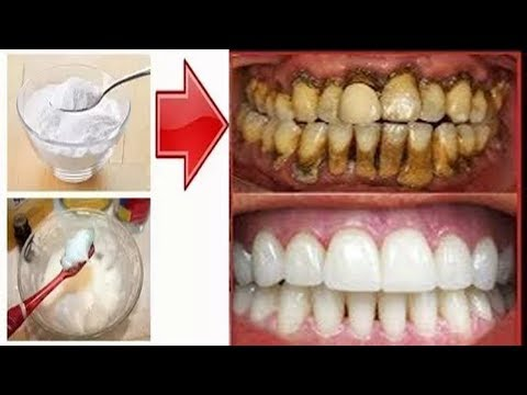 result-in-live-|-teeth-whitening-at-home-in-2-minutes-||-how-to-whiten-your-yellow-teeth-naturally