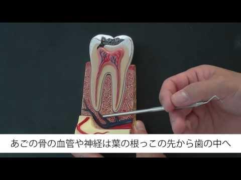 虫歯治療の具体的な方法 神戸・芦屋の歯医者 デンタルクリニックツジ