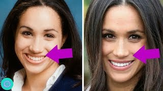 Download Meghan Markle Transformation, Weight Loss  and Plastic Surgery Mp3 and Videos
