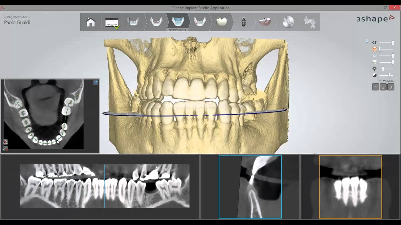 3Shape Implant Studio by DigitalDentalDesign