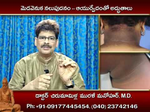 Neck Darkness, Causes, Home Remedies and Ayurveda Treatment in Telugu by Dr. Murali Manohar
