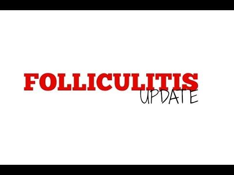 folliculitis-update