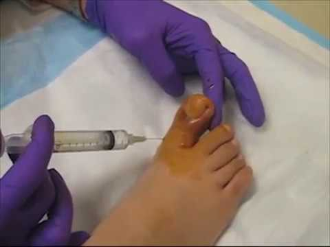 Still surgery toe numb toenail after ingrown What to