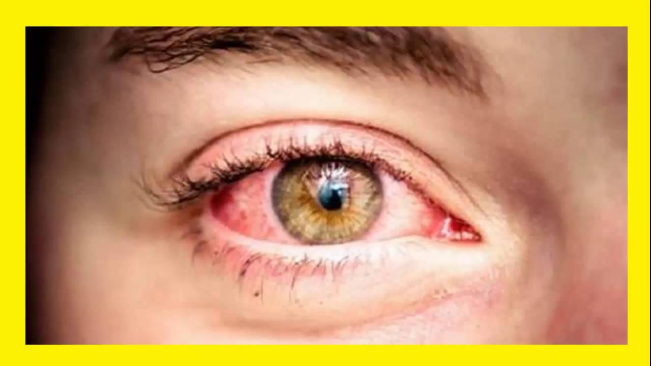 Remedios Caseros Para Eliminar Los Ojos Rojos Youtube