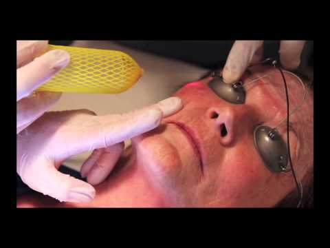 Micro Peel Treatment Flowood | Dr. Dev ManiSundaram | The Face and Body Center