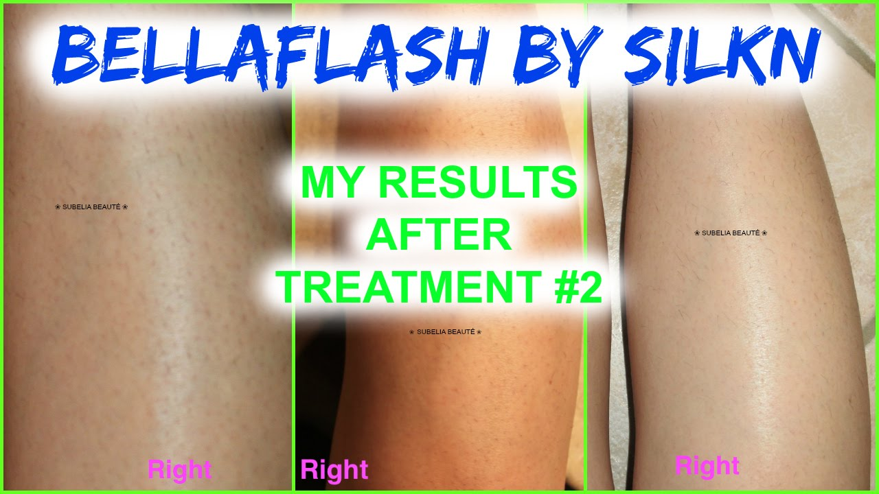 Bellaflash Hair Removal System By Silk N Exclusive At Costco My Results After 2 Treatments Youtube