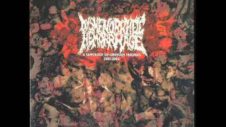 DYSMENORRHEIC HEMORRHAGE - From enslavement to obliteration (NAPALM DEATH cover)