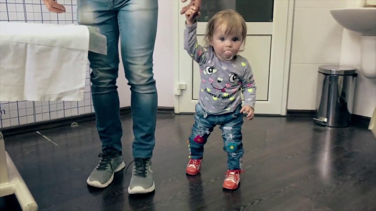 Что такое дисплазия тазобедренных суставов у детей видео мазь суставная