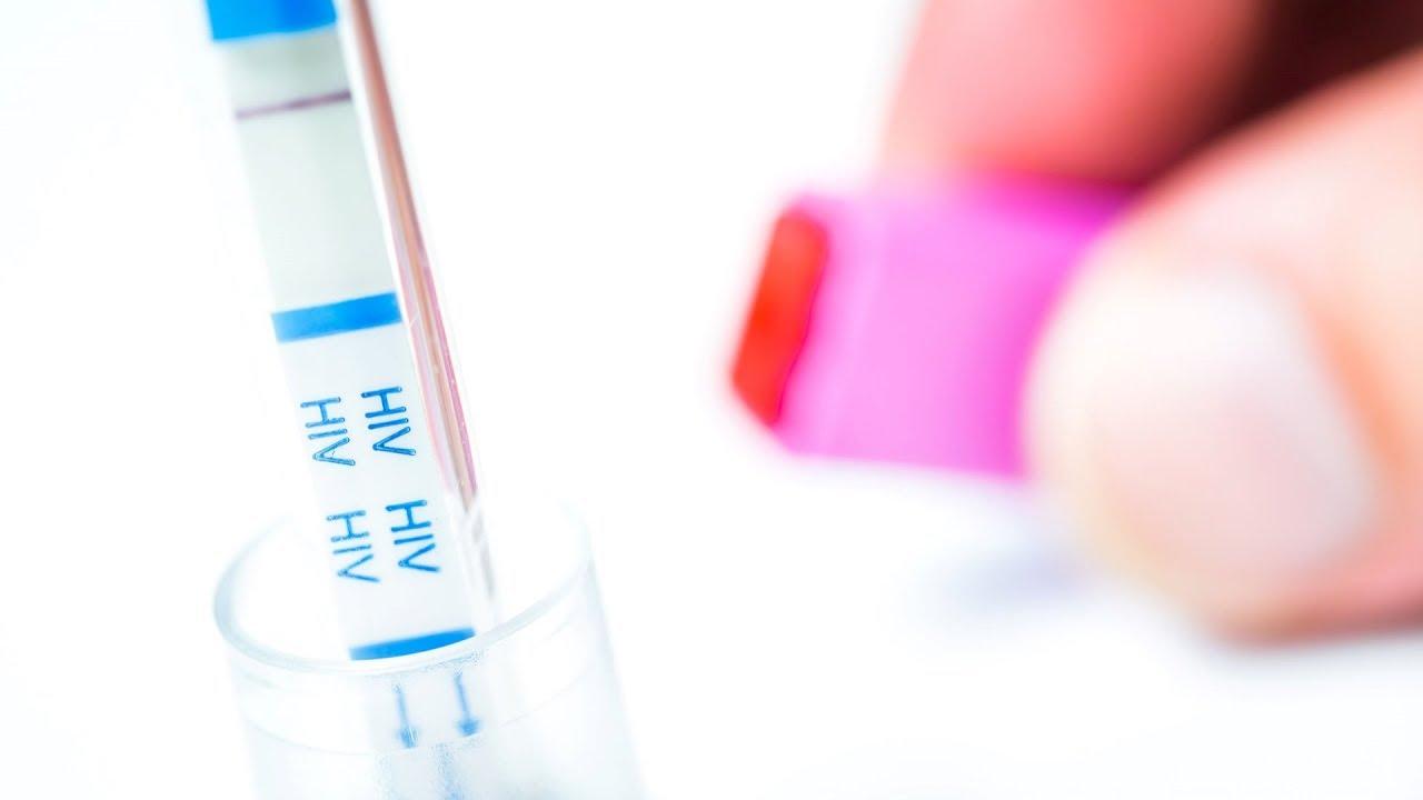 súlycsökkenés a HIV / AIDS betegekben