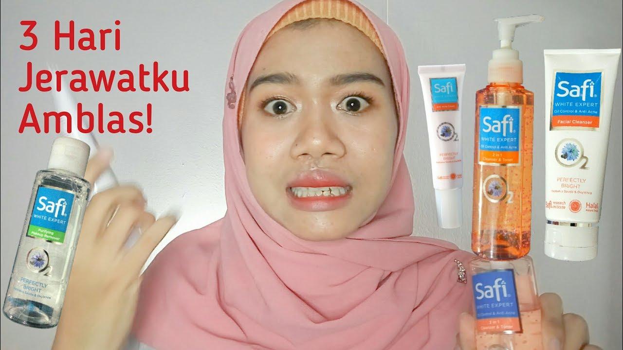 Cream Apa Yg Cocok Untuk Mnghilangkan Jerawat Uuk Anak Smp