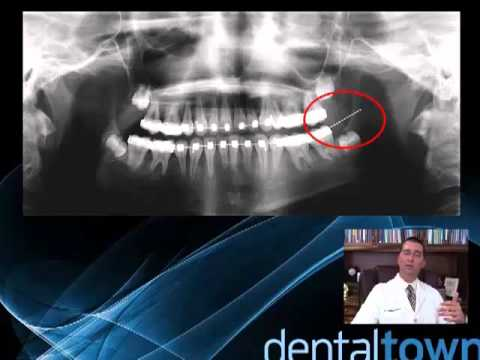 Dental CE: Triaging the Facial Pain Patient: The Non-Odontogenic Toothache