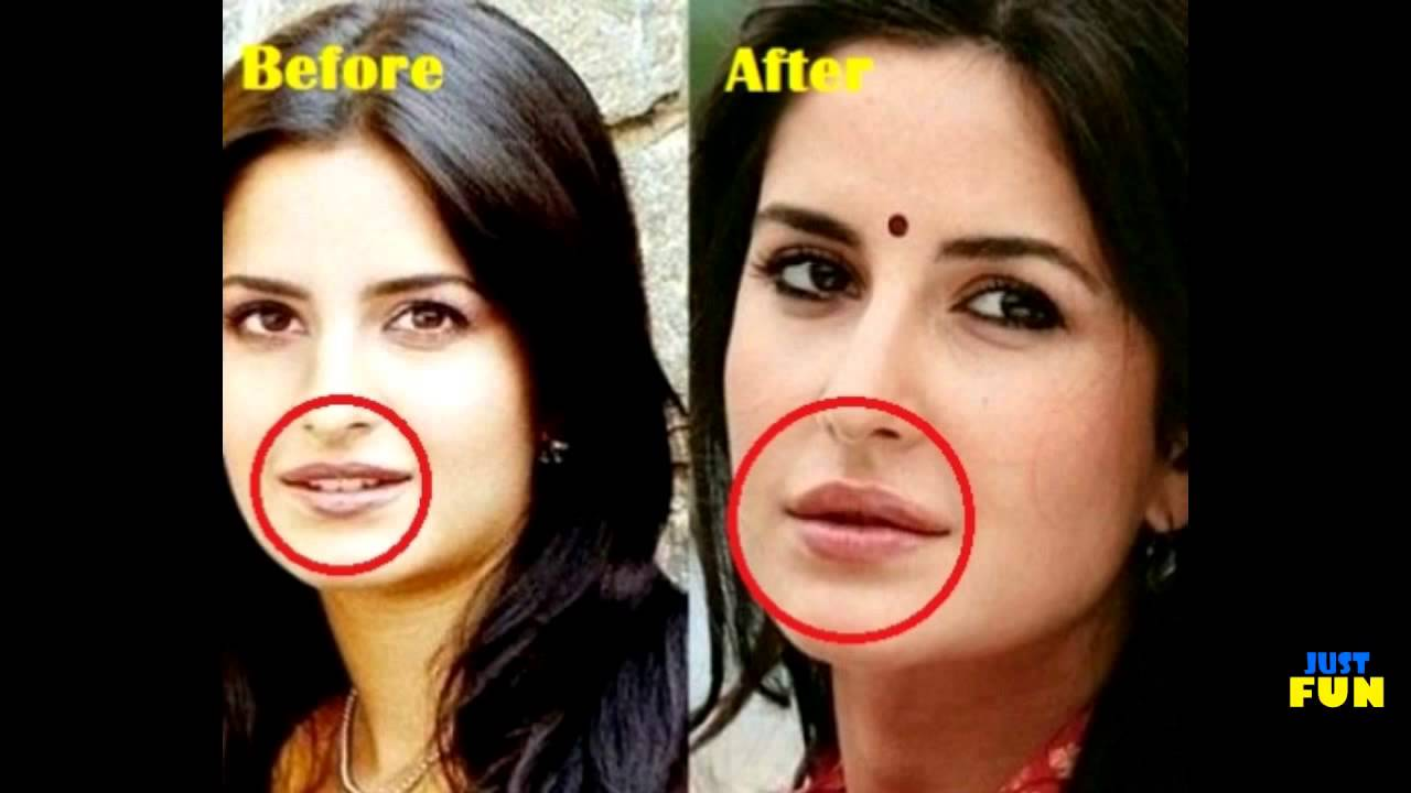 bollywood celebrities before and after plastic surgery compilation