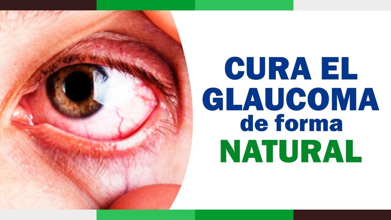 Como Tratar El Glaucoma Presion Ocular De Forma Natural Remedios Para El Glaucoma Youtube