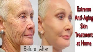 LOOK 10 YEARS YOUNGER | SKIN WHITENING & ANTI-AGING TREATMENT AT HOME | ANTI-AGING RICE FACE MASK