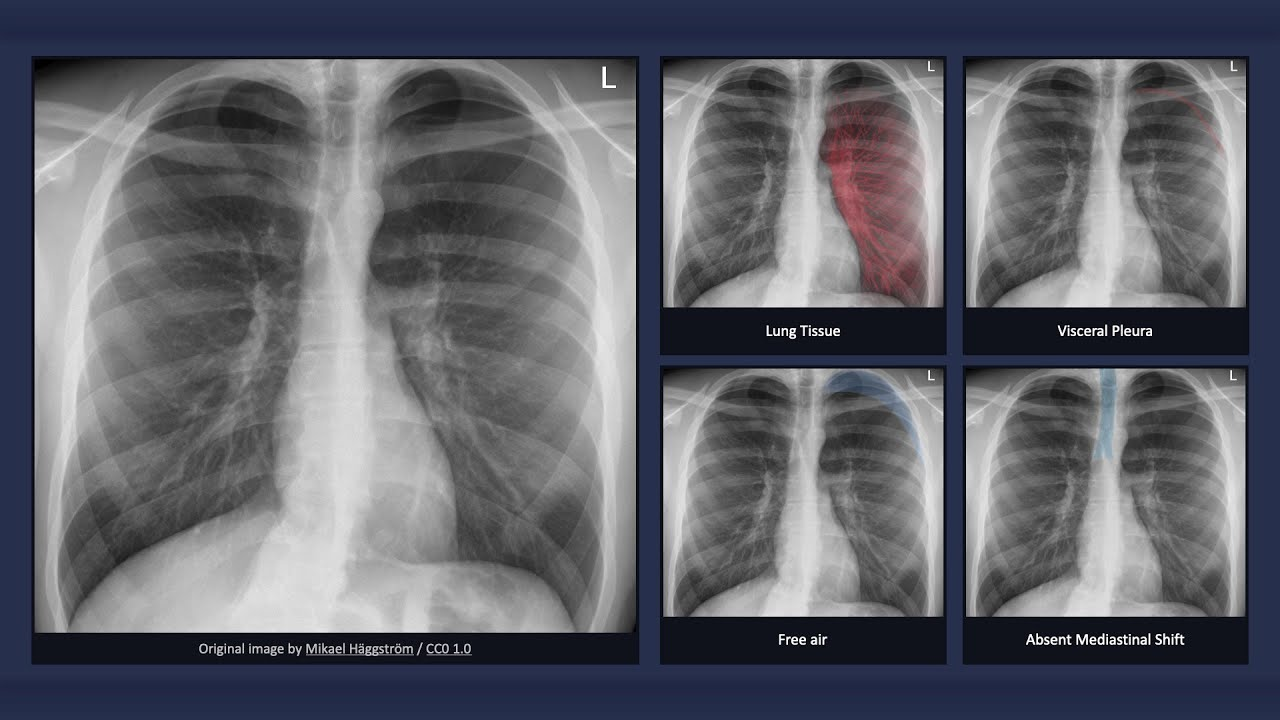 Simple Pneumothorax - Chest X ray Findings