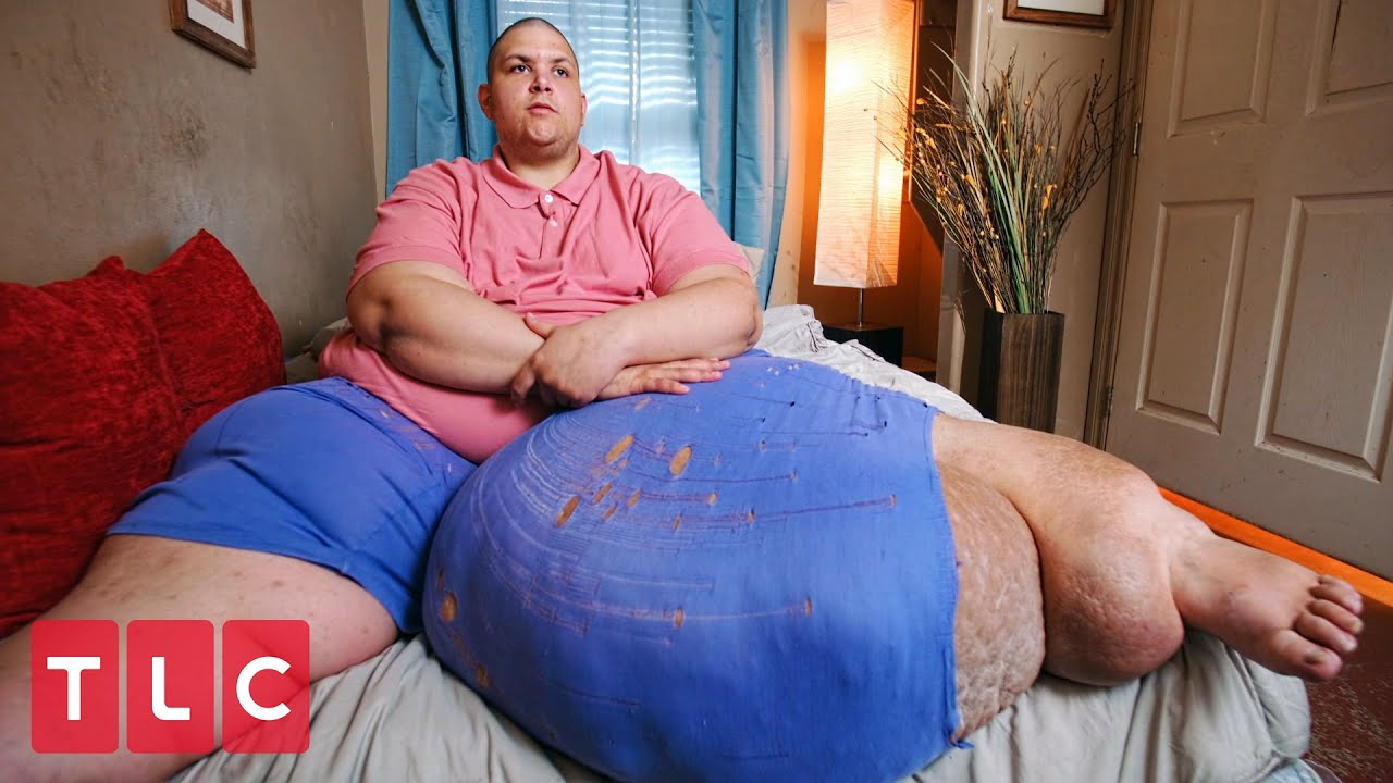 Download He Carries a 100-lb Mass On His Leg! | My 600-lb Life