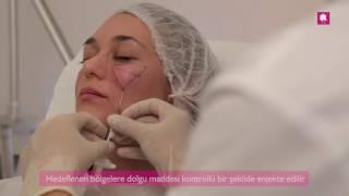 Yanaklar İçin Dolgu Uygulaması, Antalya - DK Klinik
