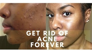 Get Rid of Acne With Vitamins!! | Natural Acne Remedy | NO Diet Change