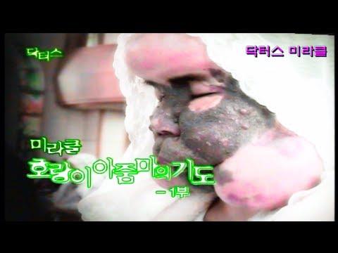 [미라클] 풍선처럼 부푼 기괴한 얼굴 ! 호랑이 아줌마의 기도 ! | 닥터스 응급실24 응급의학과 의사 119 구급대원 의학 다큐 다시보기