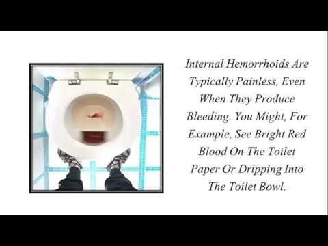 Painful Piles External Hemorrhoids Natural Treatment