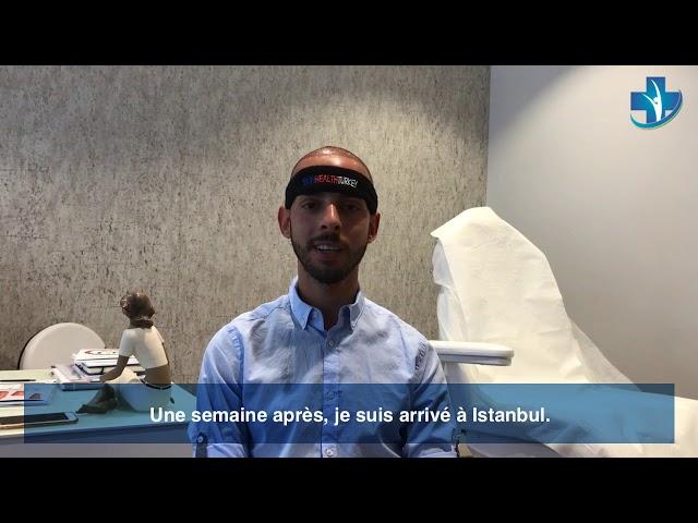 Greffe de cheveux Turquie - Témoignage de Julio - Dr. Oyku Celen / Skin Health Turkey
