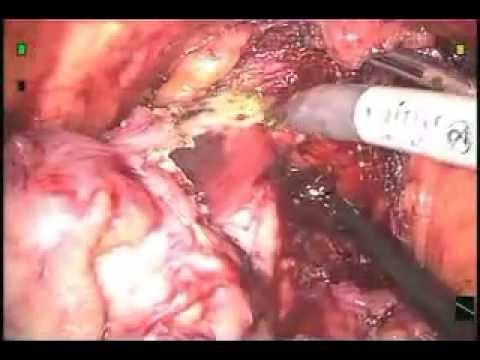 "PROSTATE CANCER VIDEO   ""Surgery Advice"""