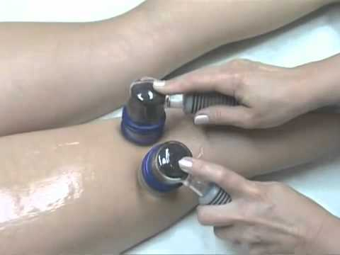 Вакуумный массаж - Вакуумная терапия - Польза вакуума