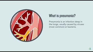 Pneumonia: Symptoms, Diagnosis, Treatment, and Prevention   Merck Manual Consumer Version