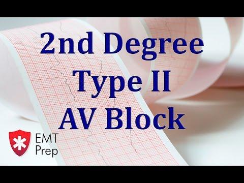 2nd Degree Type 2 AV Block ECG