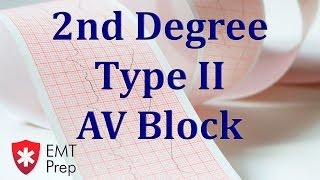 2nd Degree Type 2 AV Block ECG - EMTprep.com