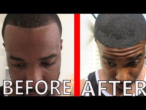 How I Fixed My Hairline + Testimonials