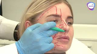 Анатомия Лица для Косметологов ► Сосуды, Связки, Жировые Пакеты