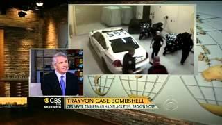 Trayvon case bombshell: Zimmerman had broken nose