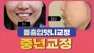 중년 치아교정 여성 돌출입/덧니 치료후 얼굴의 변화