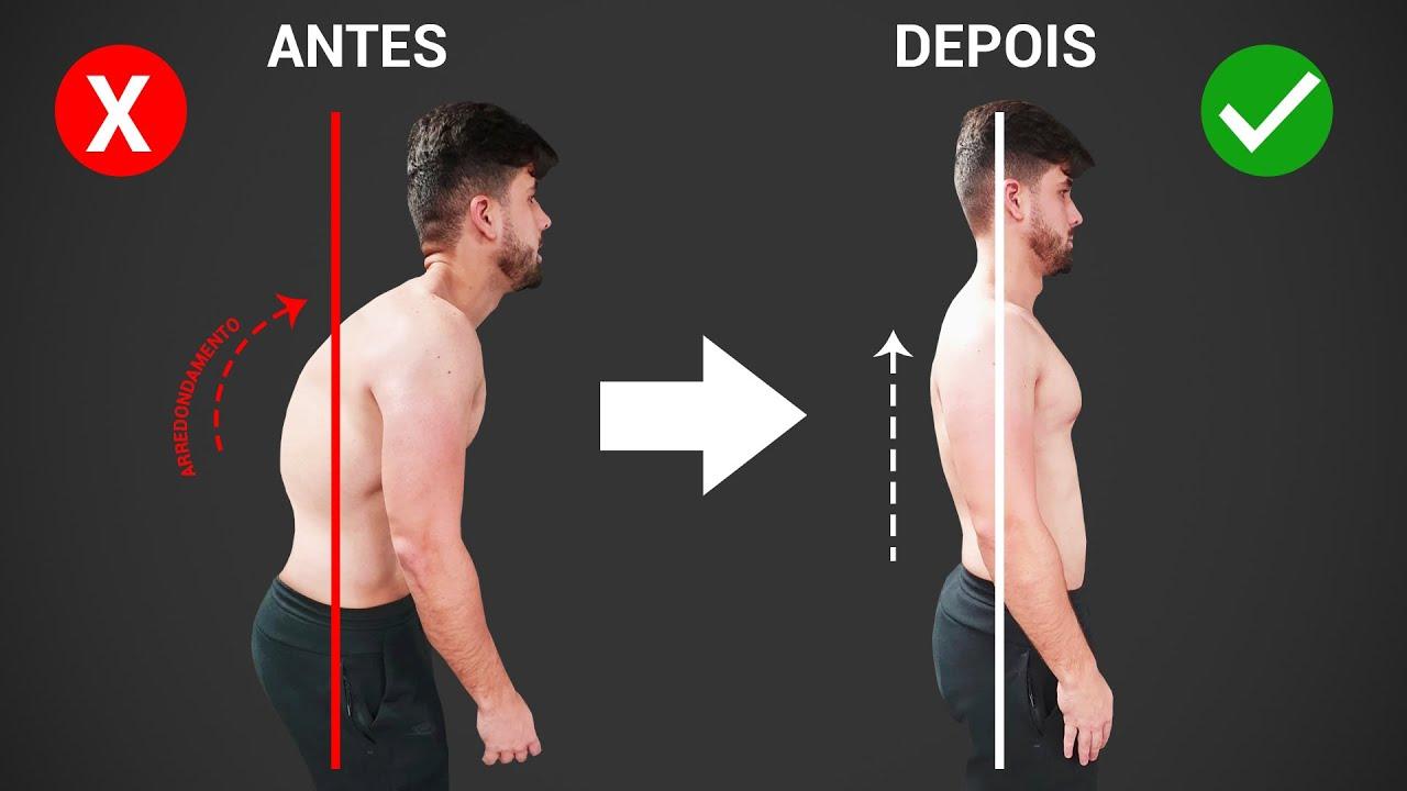 Como corrigir os ombros rodados. / Somente 5 MINUTOS! - YouTube