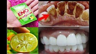 2 मिनट में गंदे पिले दाँतों को मोतियों की तरह सफेद और चमकदार बना देगा ये नुस्खा // Teeth Whitening
