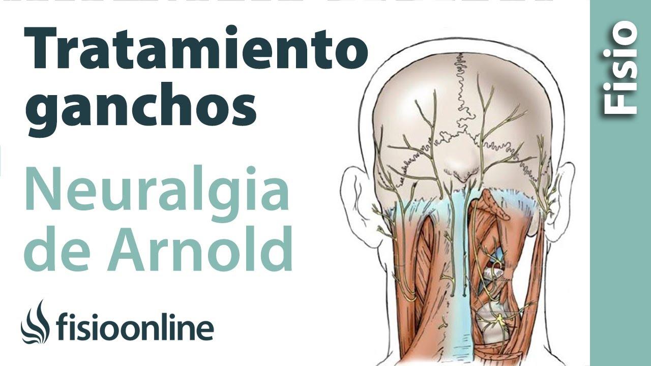 Tratamiento de fisioterapia con ganchos para la neuralgia de Arnold ...