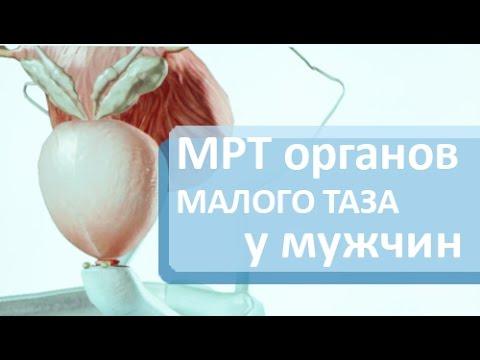 Диагностика предстательной железы. 💻 МРТ для диагностики заболеваний предстательной железы.