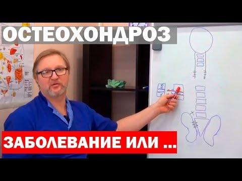 Остеохондроз не заболевание! Истинные причины и способы лечения +16